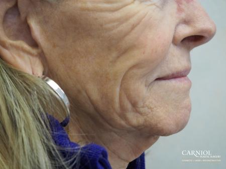 Non-Surgical Mini-Facelift: Patient 6 - Before Image