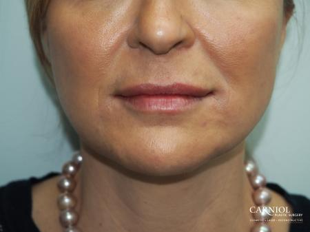 Fillers: Patient 5 - After Image 1