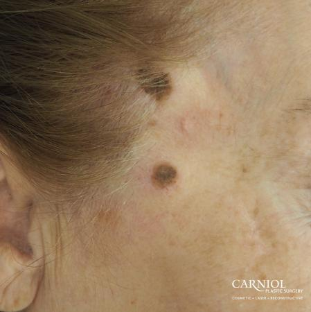 Mole/Age Spot Removal: Patient 1 - Before Image