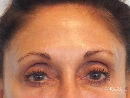 BOTOX® Cosmetic: Patient 6 - After Image 1