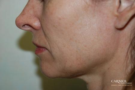 Fractional Resurfacing: Patient 1 - Before Image
