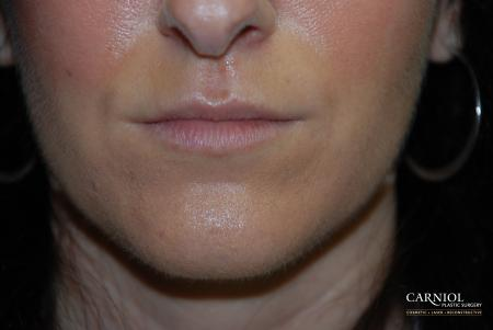 Lip Augmentation: Patient 2 - Before Image