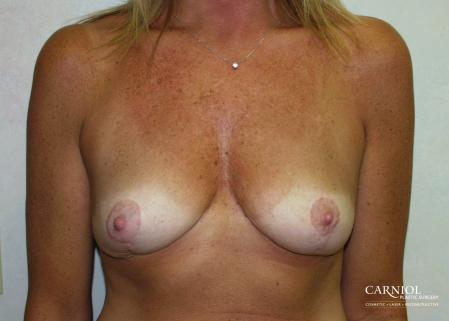 Breast-reduction-revision: Patient 1 - Before Image