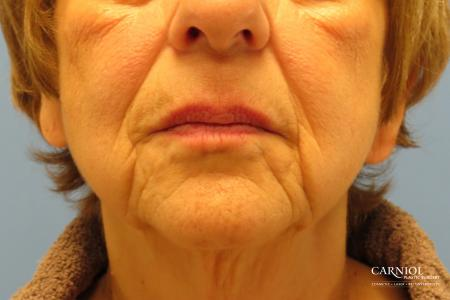 Non-Surgical Facelift: Patient 1 - Before Image 1