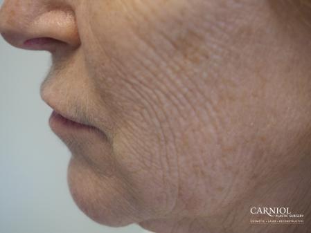 Laser: Patient 1 - Before Image 1