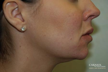 Facial Tightening: Patient 4 - After Image
