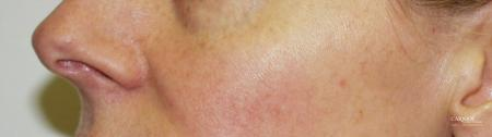 Rosacea: Patient 1 - After Image