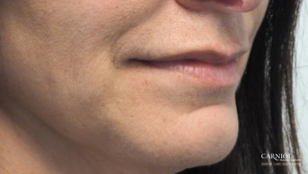 Lip Augmentation: Patient 8 - Before Image 2