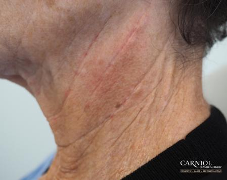 Non-Surgical Neck Lift: Patient 2 - After Image