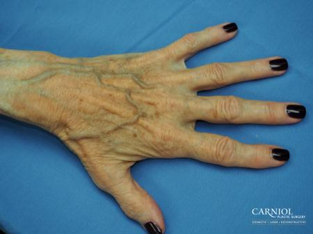 Radiesse Hand Rejuvenation - Before Image