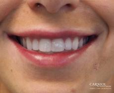 Lip Augmentation: Patient 7 - After Image