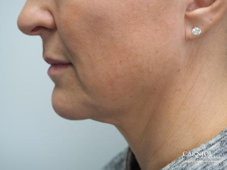 Non-Surgical Mini-Facelift: Patient 2 - Before Image