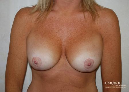 Breast-reduction-revision: Patient 1 - After Image