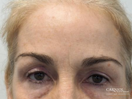 BOTOX® Cosmetic: Patient 5 - After Image 1
