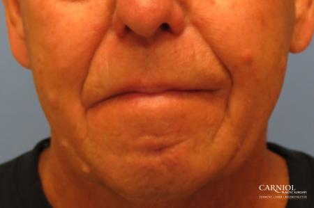 Mole/Age Spot Removal: Patient 2 - After Image