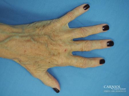 Radiesse Hand Rejuvenation - After Image