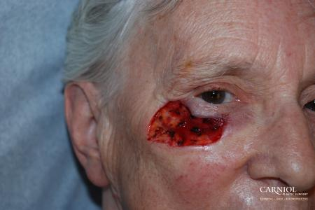 Skin Cancer Reconstruction - Face: Patient 5 - Before Image