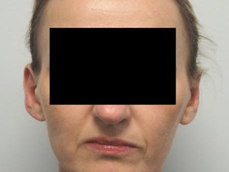 Otoplasty: Patient 3 - After Image