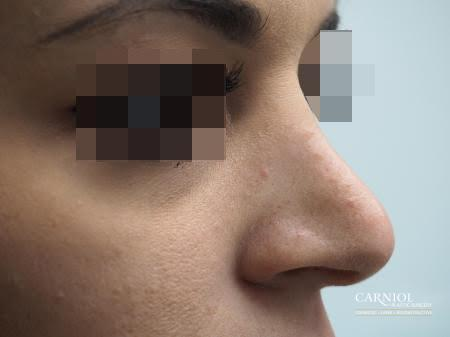Non-Surgical Rhinoplasty: Patient 1 - Before Image