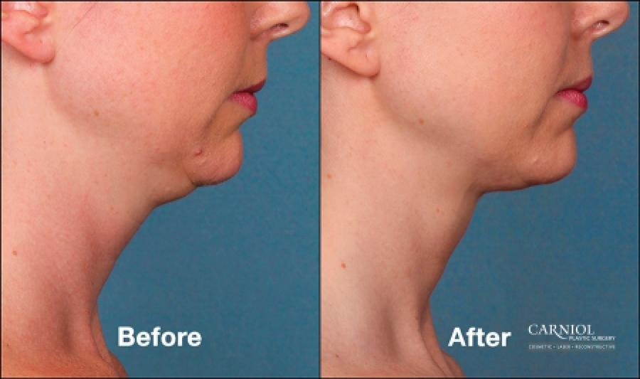 Double Chin, Kybella: Patient 2 - Before and After Image