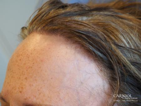 Nonsurgical Hair Restoration: Patient 1 - Before and After Image 3