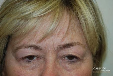 Upper Blepharoplasty Before - Before Image