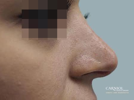 Non-Surgical Rhinoplasty: Patient 1 - After Image