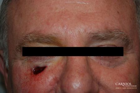 Skin Cancer Reconstruction - Face: Patient 4 - Before Image