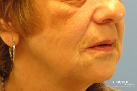 Non-Surgical Facelift: Patient 1 - After Image 2