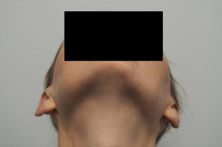 Otoplasty: Patient 3 - After Image 2