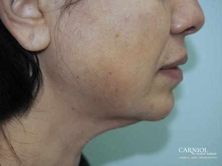 Facial Tightening: Patient 1 - After Image