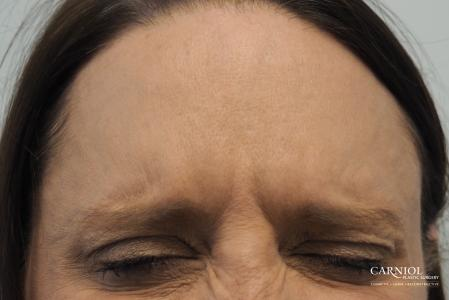 BOTOX® Cosmetic: Patient 4 - After Image 3