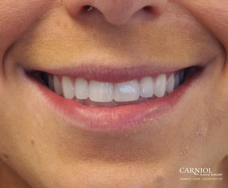 Lip Augmentation: Patient 7 - Before Image 1