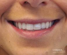 Lip Augmentation: Patient 7 - Before Image