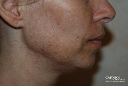 Fractional Resurfacing: Patient 2 - Before Image