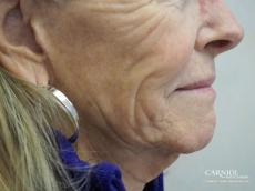 Non-Surgical Facelift: Patient 8 - Before Image