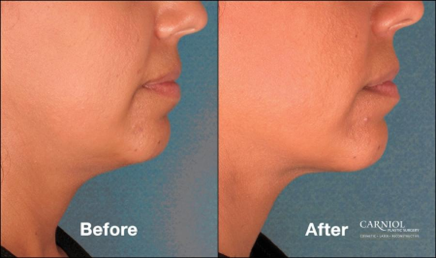 Double Chin, Kybella: Patient 3 - Before and After Image 1
