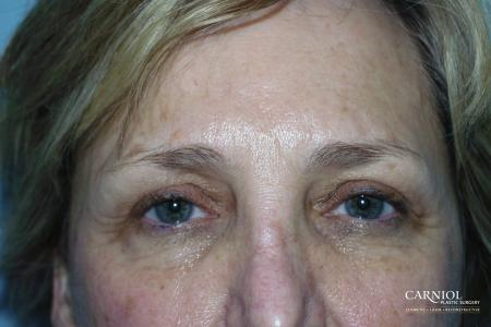 Eyelid Lift: Patient 4 - After Image 1