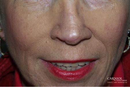 Skin Cancer Reconstruction - Face: Patient 2 - After Image