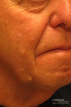 Mole/Age Spot Removal: Patient 2 - After Image 2