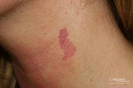 Port Wine Stain: Patient 1 - Before Image