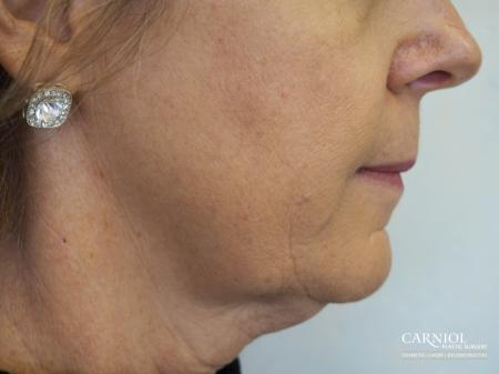 Non-Surgical Mini-Facelift: Patient 5 - Before Image