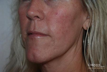 Fractional Resurfacing: Patient 3 - After Image