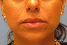Lip Augmentation: Patient 1 - After Image