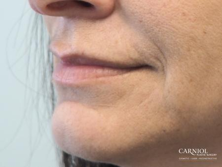 Lip Augmentation: Patient 8 - Before and After Image 3