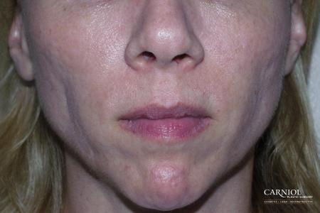 Non-Surgical Mini-Facelift: Patient 8 - Before Image