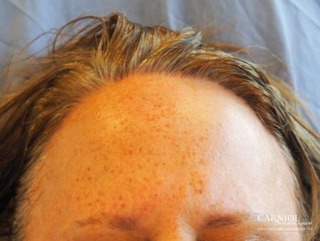 Nonsurgical Hair Restoration: Patient 1 - Before Image
