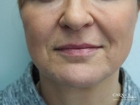 Fillers: Patient 5 - Before Image 1