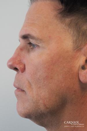 Non-Surgical Facelift: Patient 2 - After Image 3