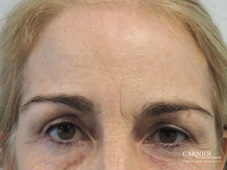 BOTOX® Cosmetic: Patient 5 - Before Image